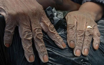 A woman's hands are wrinkled from wading in the flood water
